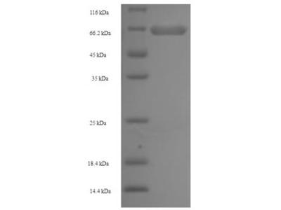 Recombinant Human AP-2 complex subunit mu(AP2M1) (E.coli)