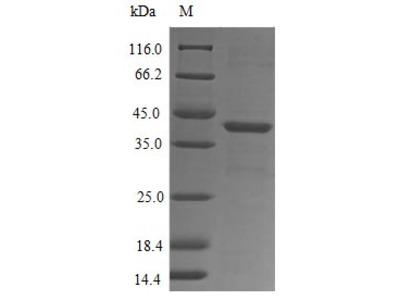 Recombinant Human fMet-Leu-Phe receptor(FPR1),partial (E.coli)