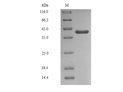 Recombinant Human Glyceraldehyde-3-phosphate dehydrogenase, testis-specific(GAPDHS),partial (Baculovirus)
