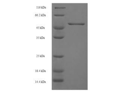 Recombinant Human Chitinase domain-containing protein 1(CHID1) (E.coli)