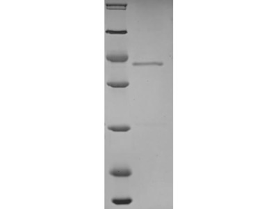 Recombinant Human Sodium/calcium exchanger 1 (SLC8A1),partial