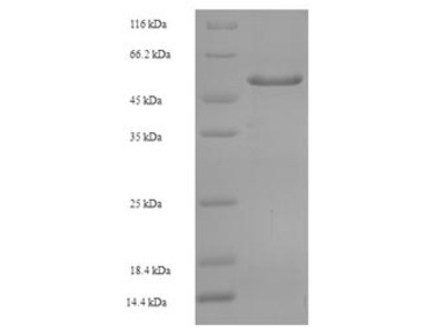 Recombinant Human Tyrosine-protein phosphatase non-receptor type substrate 1(SIRPA),partial (E.coli)