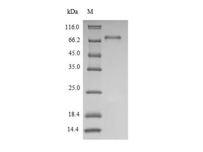 Recombinant Human Tyrosine-protein kinase Lck(LCK) (E.coli)