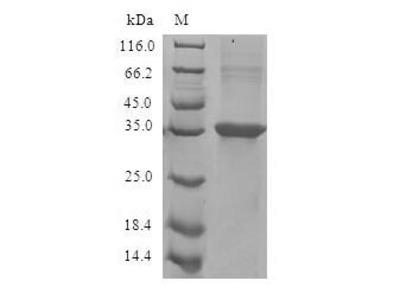 Recombinant Human Eotaxin(CCL11) (E.coli)