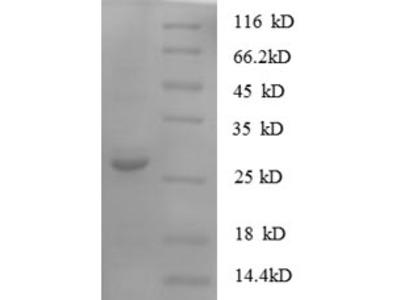 Recombinant Human Protein S100-A11(S100A11) (E.coli)