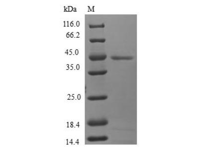 Recombinant Human Mitochondrial fission process protein 1(MTFP1) (E.coli)