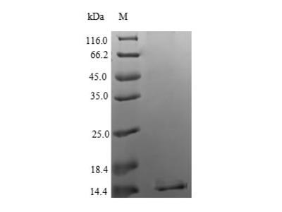 Recombinant Human Apoptosis regulatory protein Siva(SIVA1) (Yeast)