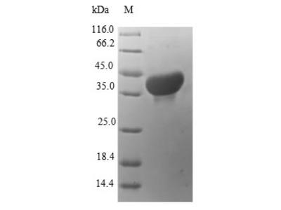 Recombinant Human Protein S100-A14(S100A14) (E.coli)