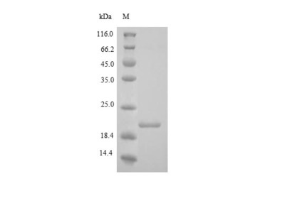 Recombinant Human Collagen alpha-1(XVIII) chain(COL18A1),partial  (Yeast)