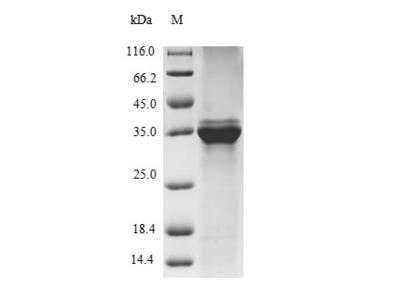 Recombinant Bovine Protein S100-A9(S100A9) (E.coli)