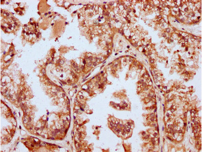 MBNL3 Antibody