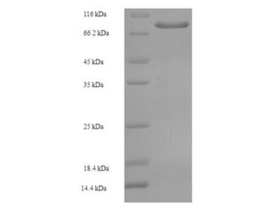 Recombinant Human Arylsulfatase G(ARSG)