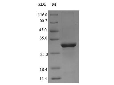Recombinant Chicken Anosmin-1(ANOS1),partial (E.coli)