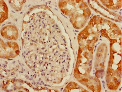 USHBP1 Antibody