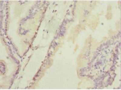 HAND2 Antibody