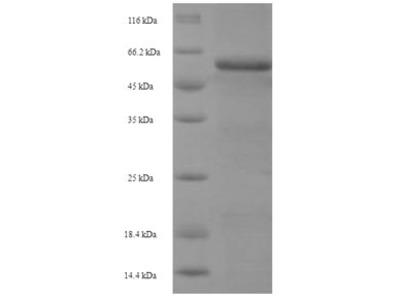 Recombinant Human Glia-derived nexin(SERPINE2) (E.coli)