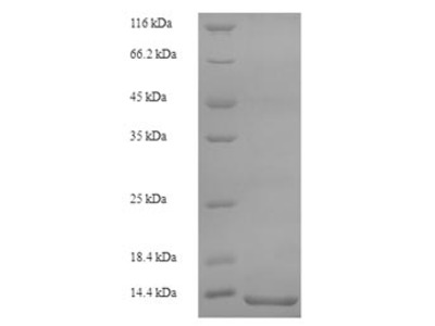 Recombinant Rat Protein S100-A8(S100a8) (Yeast)
