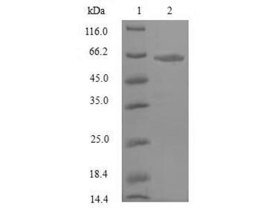 Recombinant Rat Atrial natriuretic peptide receptor 3(Npr3),partial (E.coli)