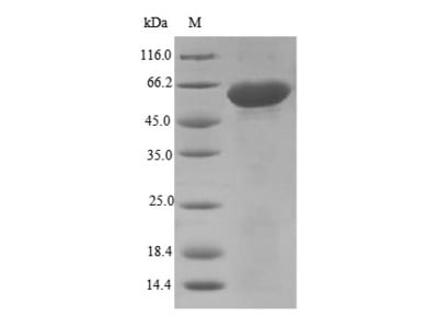 Recombinant Mouse Disintegrin and metalloproteinase domain-containing protein 12(Adam12),partial