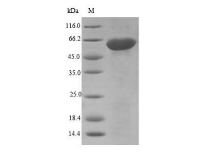 Recombinant Mouse Disintegrin and metalloproteinase domain-containing protein 12(Adam12),partial (E.coli)