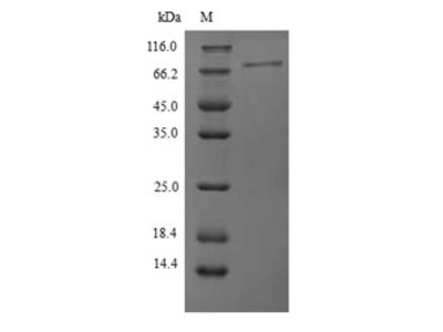 Recombinant Human Protein phosphatase 1 regulatory subunit 15A(PPP1R15A),partial (Yeast)