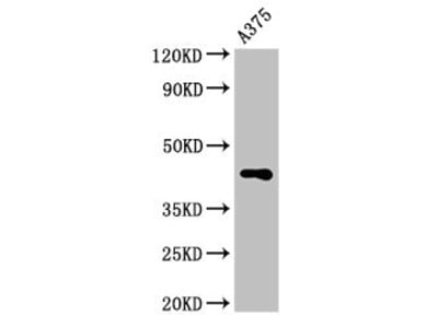 AURKC Antibody