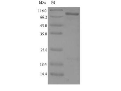 Recombinant Human NAD-dependent protein deacetylase sirtuin-1(SIRT1) (E.coli)