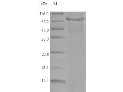 Recombinant Mouse A disintegrin and metalloproteinase with thrombospondin motifs 5(Adamts5) (E.coli)