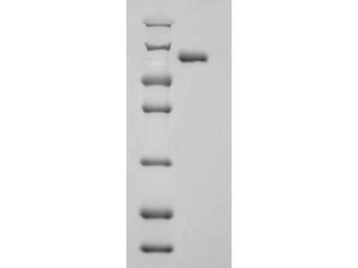 Recombinant Human Aryl hydrocarbon receptor nuclear translocator(ARNT),partial