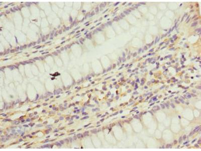 TAF12 Antibody