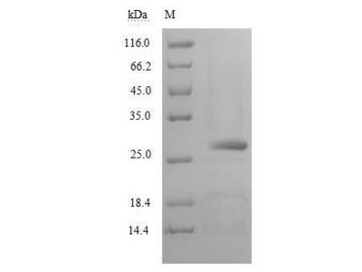 Recombinant Human Chymotrypsin-like elastase family member 2A(CELA2A) (Yeast)