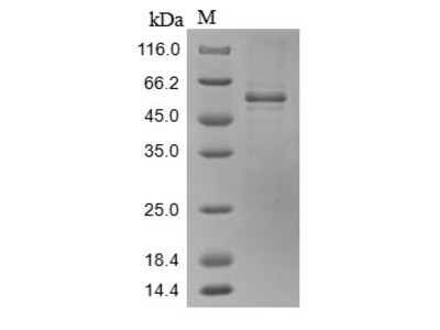 Recombinant Mouse Sushi repeat-containing protein SRPX2(Srpx2) (Baculovirus)