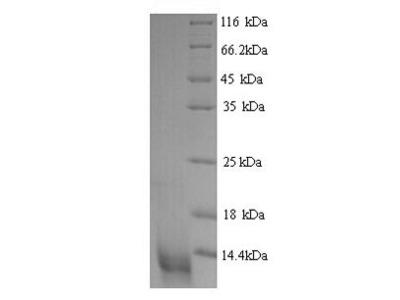Recombinant Bovine C-C motif chemokine 20(CCL20) (Yeast)