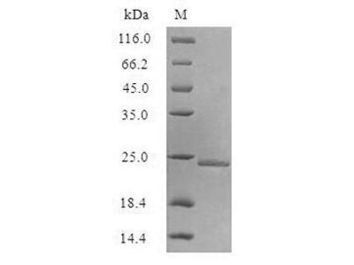 Recombinant Escherichia coli Aquaporin Z (aqpZ) (Active) (in vitro E.coli expression system) (Full Length)