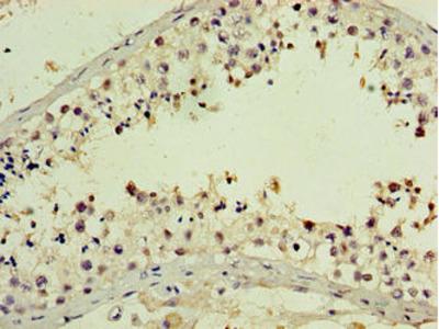 PNMA5 Antibody