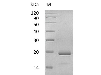 Recombinant Human Interleukin-11(IL11),partial (Active) (Yeast)