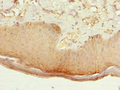 CMTR2 Antibody