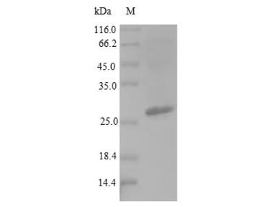 Recombinant Salmonella typhi DNA-binding protein HU-beta(hupB)