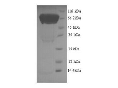 Recombinant Human Autophagy-related protein 16-1(ATG16L1) (Yeast)