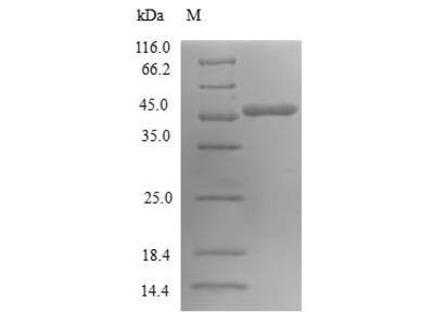Recombinant Human GTP-binding protein SAR1a(SAR1A)