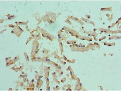 CST1 Antibody