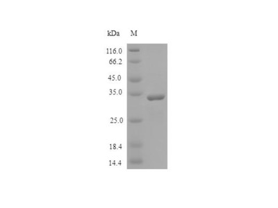 Recombinant Human SPARC protein(SPARC),partial (Active) (E.Coli)