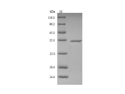 Recombinant Human Ficolin-2(FCN2) (Yeast)