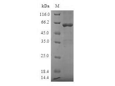 Recombinant human Sulfotransferase 1A3/1A4