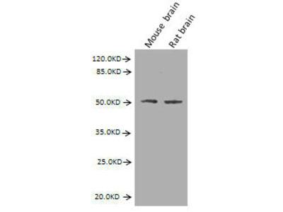 GFAP Monoclonal Antibody