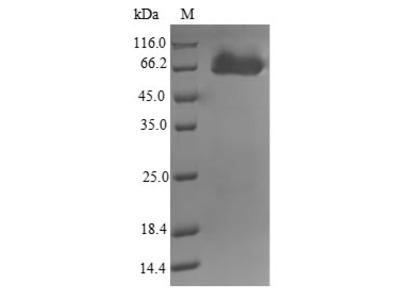 Recombinant Mycobacterium tuberculosis Putative amidase AmiB2(amiB2) (E.coli)