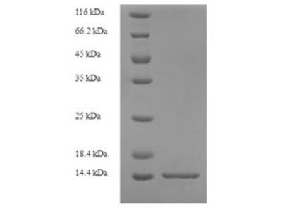 Recombinant Rat Protein S100-A8(S100a8) (E.coli)