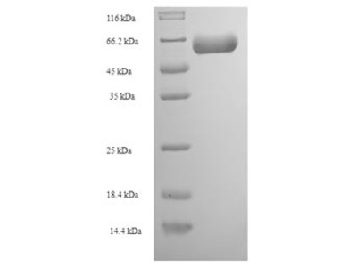 Recombinant Human Actin-like protein 7A(ACTL7A)
