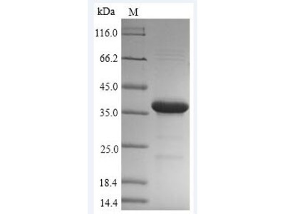 Recombinant Mycobacterium tuberculosis Hypoxic response protein 1(hrp1) (E.coli)