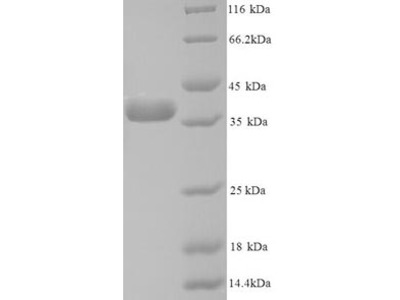 Recombinant Human Annexin A5(ANXA5) (Yeast)